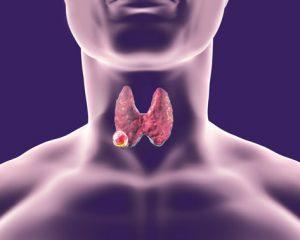 Mengenal kanker tiroid